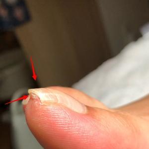 皮膚がくっついて足の爪が怖くて切れない!ドイツ式フットケア80分