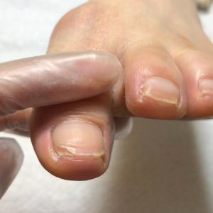 登山靴が合わなくて爪が痛くなったお客様