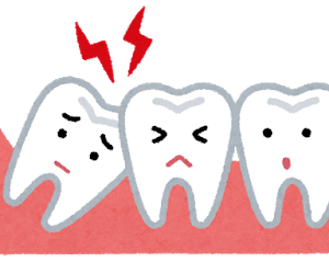 親知らず「歯茎の中で横向きに生えたろ!」