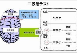 有識者会議の提言に基づく新大綱が掲げる認知症予防施策の問題点と具体的な方策の提起ーそのⅠ(D-05)