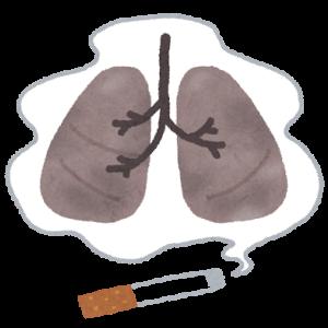 肺癌の疑いが浮上