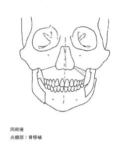 退院・第一第二鰓弓症候群