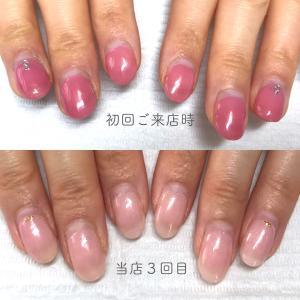 「深爪や小さい爪」を縦長の美爪に変化させるには?