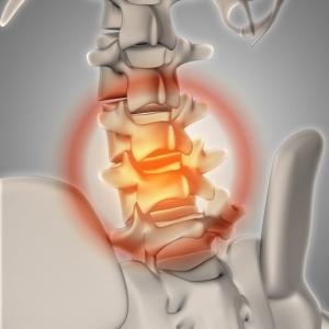 腰椎椎間板ヘルニアとは