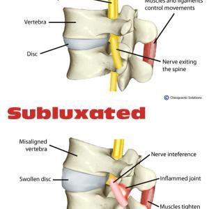 脊椎の整合性変位が神経系を阻害する身体への影響