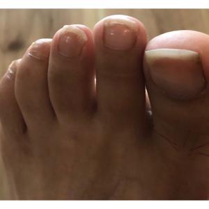 足の爪と腰痛と踵の角質の関係