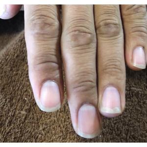 爪の見た目トラブルと役割的トラブル