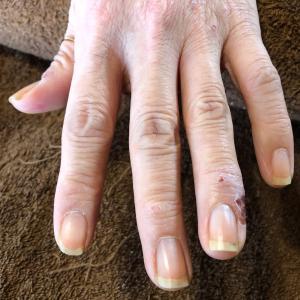 美容師さんの爪と甘皮 問題
