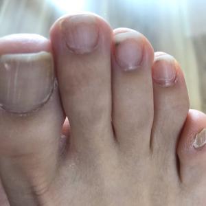 外反母趾や内反小趾の方に多い「爪」トラブル