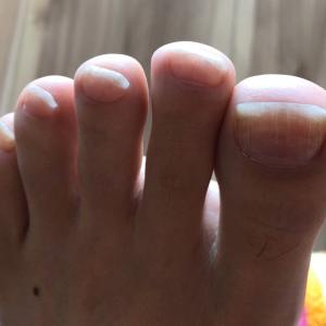 爪の縦線を放置した結果