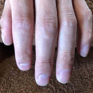 爪の炎症と内出血