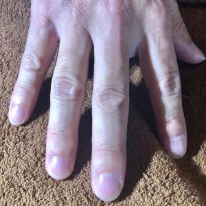 指が痺れる原因となる「爪」