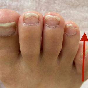 足爪と内反小趾の関係