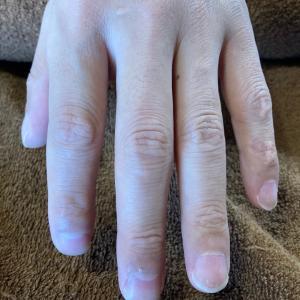 崩れた指先と爪と…