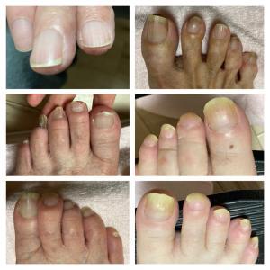 高齢者の爪と真菌感染