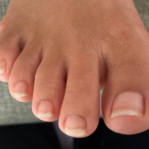陥入爪から巻き爪になりそうな足爪