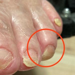高齢者の足爪の切り方
