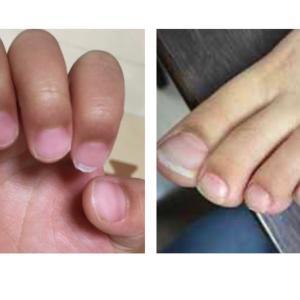 7歳までの爪の切り方で決まること