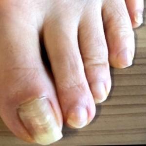 爪と段差と膝腰痛の関係