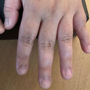 大人の爪噛み