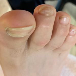 怪我をしやすい足爪