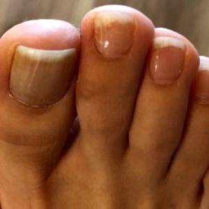 爪と足の変形