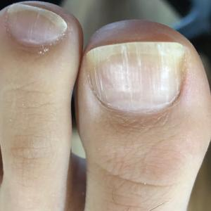 爪の縦線と腰痛