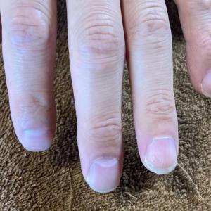 爪の表面とは