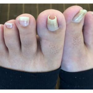 巻き爪の根本的な改善