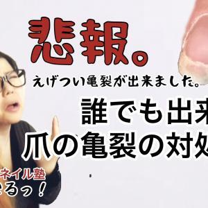 【簡単】【リペア】現役ネイリストが教える爪の亀裂の直し方【亀裂】【爪の補修】【トラブルネイル】