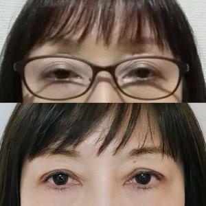 眼瞼下垂手術の話はこれでおしまい