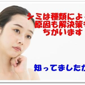 【シミの原因は紫外線だけではない!?】しみの種類と解決方法