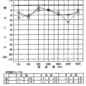 『測定値と聴感の違い』は自分の耳に原因があった!!!