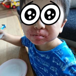 息子の湿疹、再び…2019.9.20