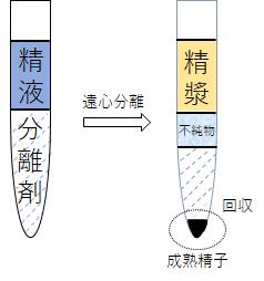 当院の精液処理法