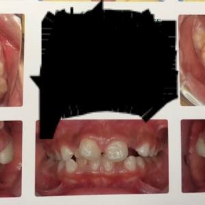 歯科矯正1回目