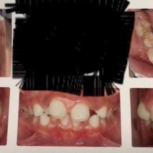歯科矯正3回目