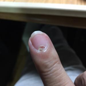 指趾粘液嚢胞