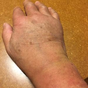 手を痛めた。