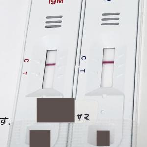 コロナの抗体検査