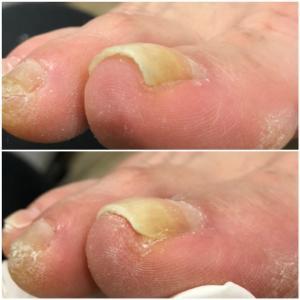 足の爪がうまくカット出来ない