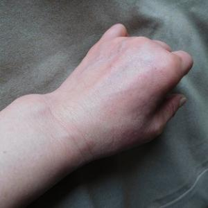 皮膚科クリニック通院から1日目。