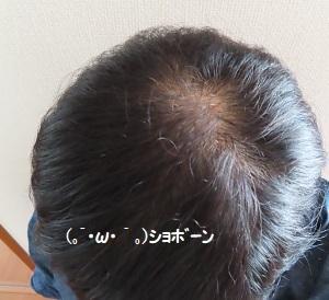 「髪の毛の事」を久しぶりに^^;