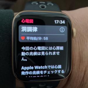 Apple Watchの心電図機能を使ってみた