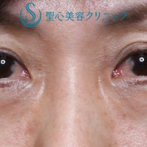 目の下の若返りを注入で(プレミアムPRP 3M)
