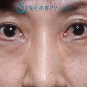 目の下の若返り(プレミアムPRP 3Mまでの詳細経過)