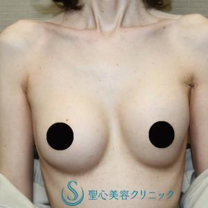 乳房バッグプロテーゼの入れ替え(術後1ヶ月)