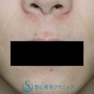 リップリフト(鼻下短縮術)術後8ヶ月