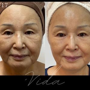 ADS開始~4週間で71歳の母が驚きの結果に!