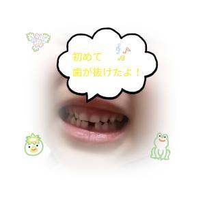 初めて歯がぬけた
